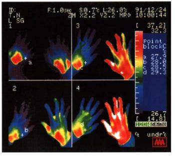 星状神経節照射による効果