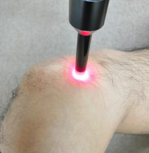 膝関節への照射