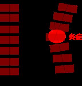 バランスの崩れによる炎症を引き起こすイメージ図