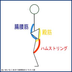 腰痛筋緊張イラスト図