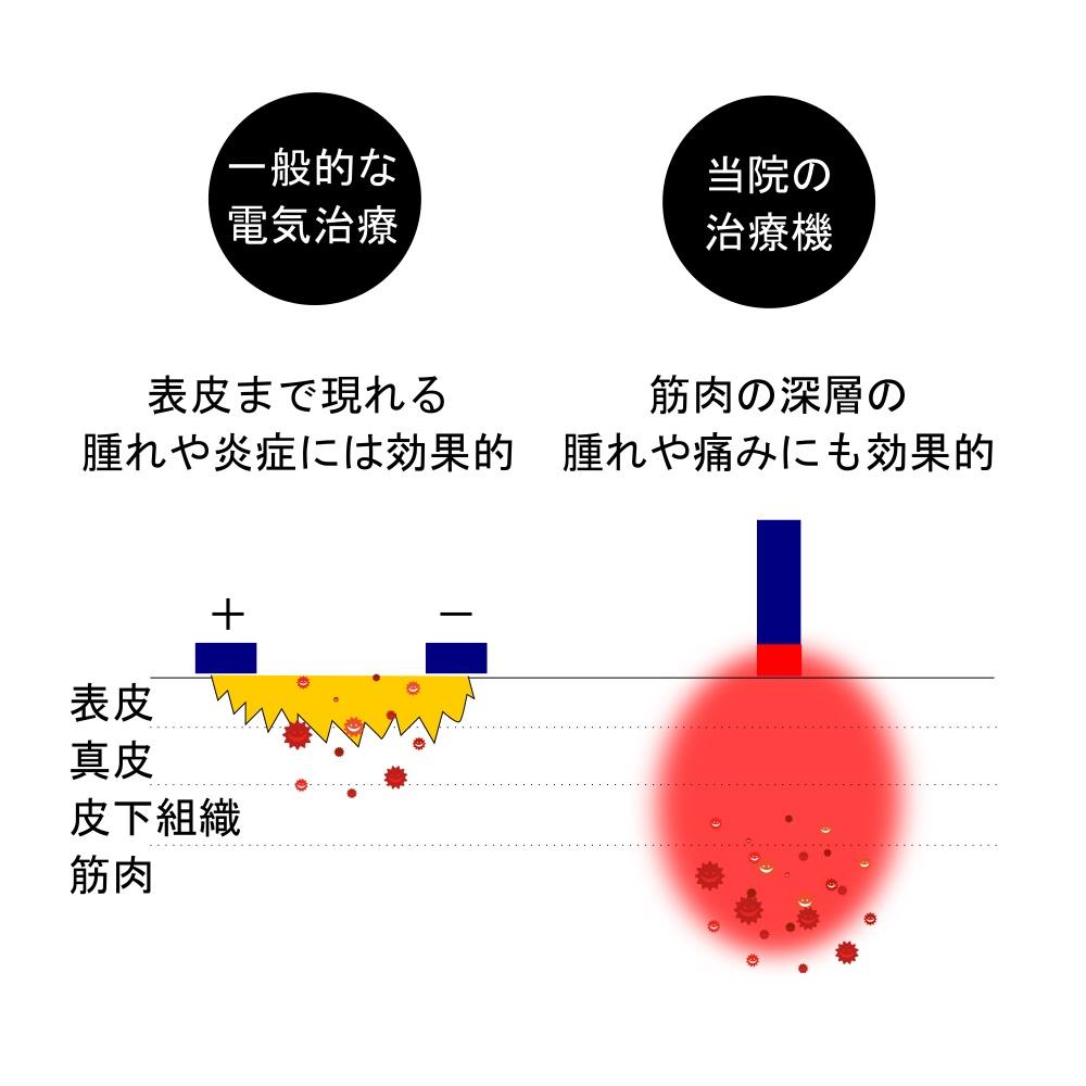 くまのて接骨院の施術と他院の施術の比較イメージ1