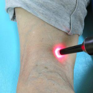 膝痛スーパーライザー