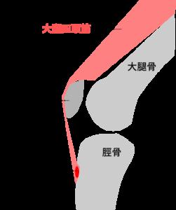 オスグッド ひざの成長期の痛み