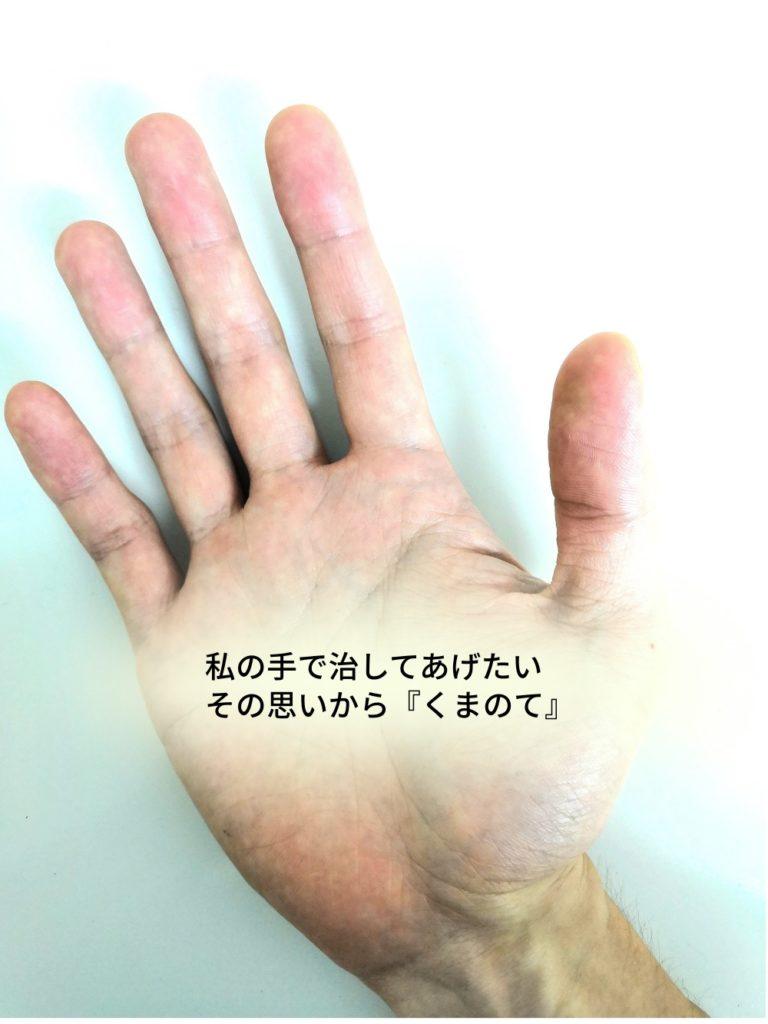 くまのて接骨院の院長の手で坐骨神経痛も改善に導く