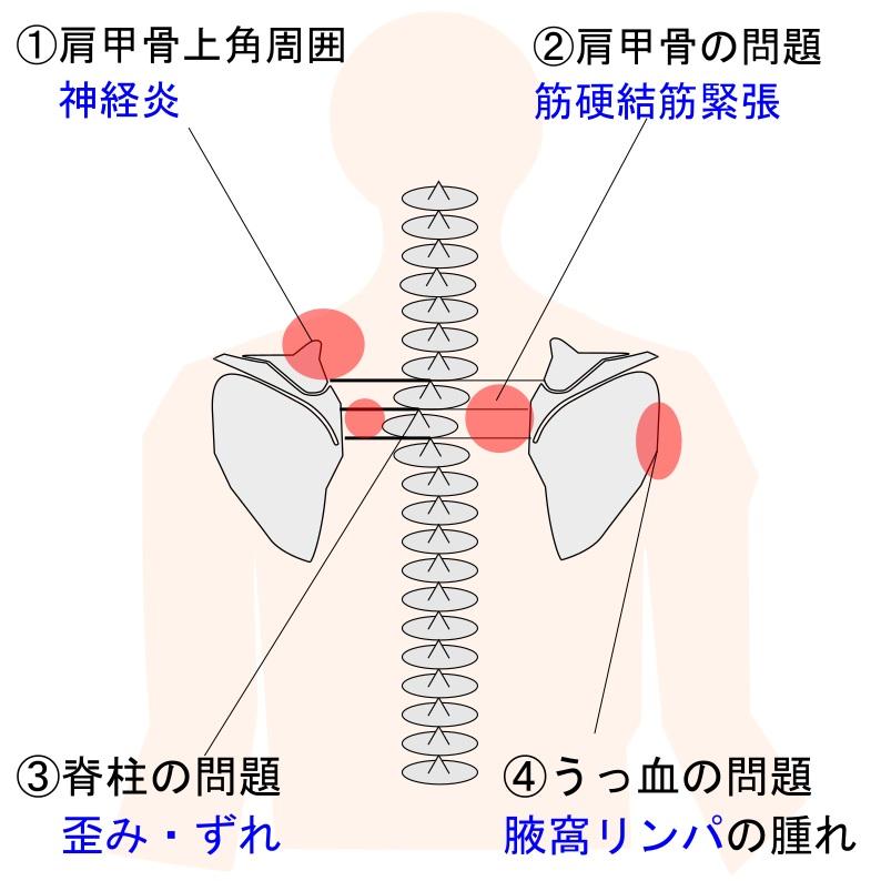 首の痛みの種類画像
