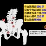 腰痛の主なポイントを紹介