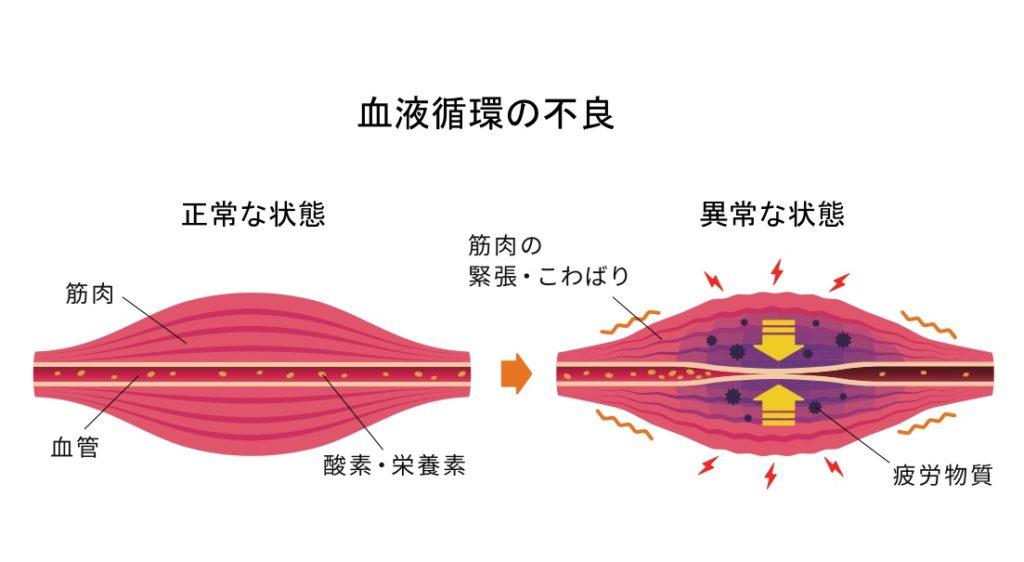 血管が収縮し血流停滞