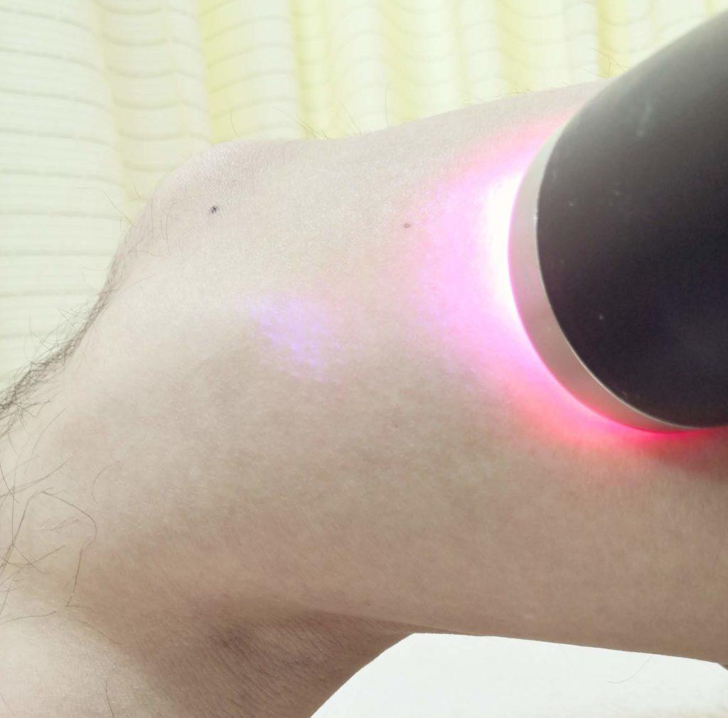 膝の痛みの施術写真
