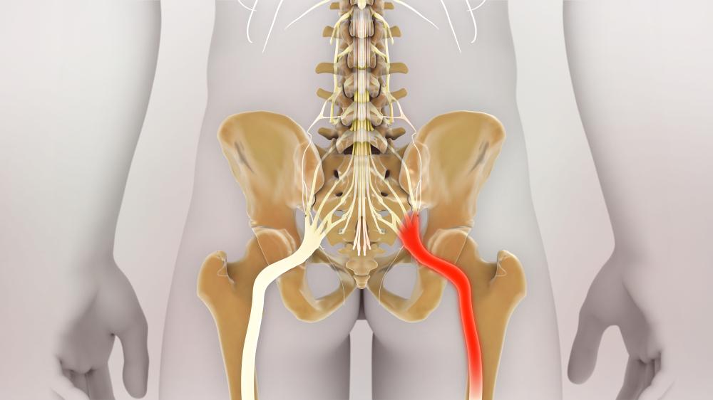 坐骨神経痛の写真