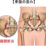 骨盤の歪みの影響で仙腸関節炎