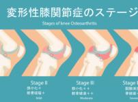 変形性膝関節症は青葉台のくまのて接骨院