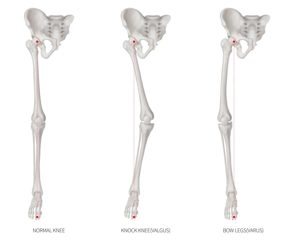膝関節のアライメントを整えるくまのて接骨院