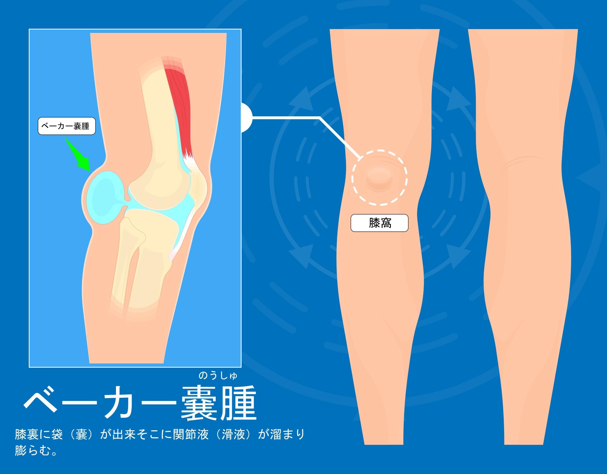 ベーカー嚢腫は膝の裏に袋が出来る疾患