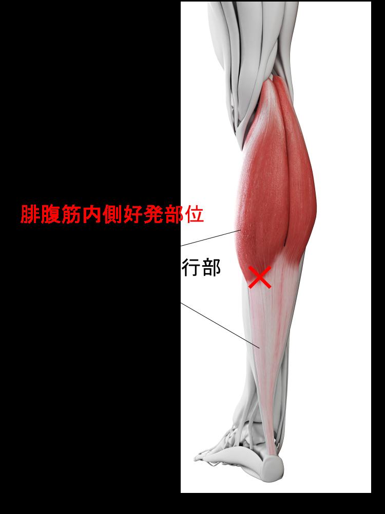 腓腹筋内側肉離れ好発部位