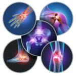 関節の種類や影響